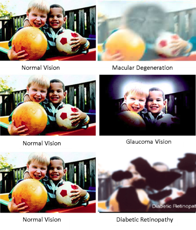 Examples of Macular Degeneration, Glaucoma vision and Diabetic Retinopathy sight loss