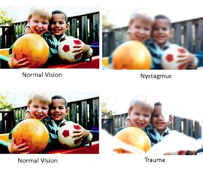 Examples of Nystagmus and Trauma sight loss